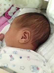 宝妈们帮忙看看宝宝这个头型是正常的嘛