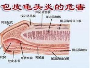 北京魏公村包皮龟头炎去哪家男科医院看好