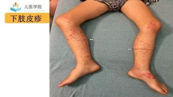 ...4期答案丨下肢紫癜性皮疹 小儿急腹症