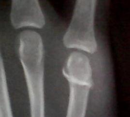 右手第五掌骨骨折不做手术可以么
