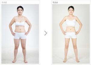 japanesetub双性人-吸脂瘦身适合部位有哪些?   脸部吸脂瘦身是脸部脂肪容易堆积的部位...