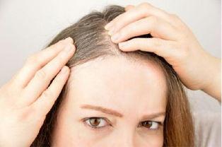 ...%的白头发.(图片来源: cunaplus/Shutterstock)-白头发透露了哪...