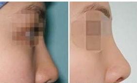 泉州注射微整形手术前后对比图-注射隆鼻 让美丽没有风险