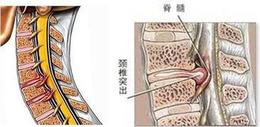 怎么判断脊髓型颈椎病