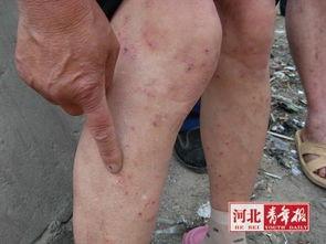 村民得病,腿上有很多小红疙瘩-河北秦皇岛一处村庄上千人浑身起小...