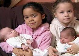 ,他们的双胞胎女儿降生了,人们却惊奇的发现,他们一个继承了爸爸...
