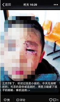 女子当街抢男孩 被阻猛戳孩子眼睛逃跑