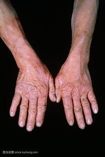 ...是一个术语用来描述外部代理皮肤的炎症反应如 工业 或在所述接触性...