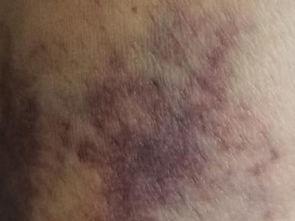 小儿过敏性紫癜的诱发原因是什么呢?