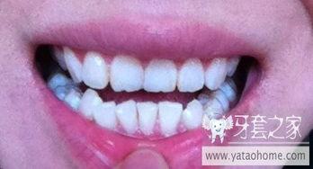 ...请大家帮忙看看应该怎么整 不拔牙矫正 中国最大的牙齿矫正论坛及...