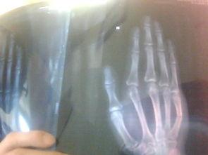 右手小拇指掌骨骨折,有片子 用打石膏吗
