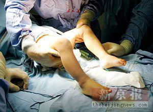 ...来,准备给她做男性畸形外生殖器切除手术.-幼童长男女生殖器续 ...
