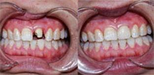 牙齿矫正的效果好不好
