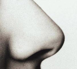 鼻子的种类-玻尿酸注射隆鼻相信大家都不会陌生,深圳整形医院医生介绍,深圳玻...
