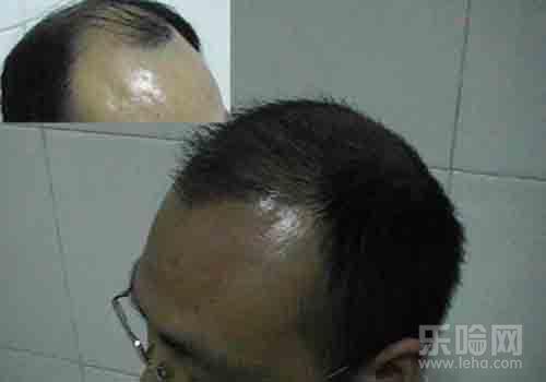 溢脂性脱发能治好吗