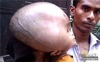 印度夫妻生出大头娃娃,医生答复让他们气愤不