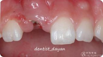 ...拔牙重塑技术及前牙种植美学修复