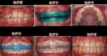 上海华美牙齿矫正都有哪些方法呢