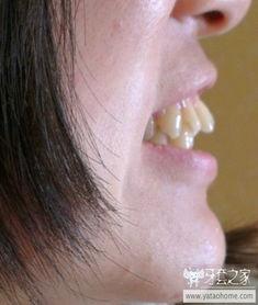 26岁了,纠结好久一直没勇气拔牙 龅牙矫正 中国最大的牙齿矫正论...