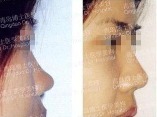 隆鼻恢复需要多久时间,隆鼻大概要多少钱?专家指出,隆鼻术后鼻尖...