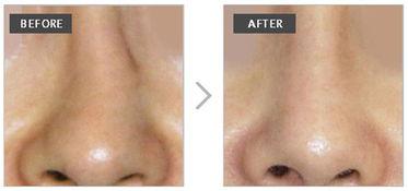 没有任何明显性的疤痕.具体方法... 歪鼻梁不仅影响美观还会影响鼻子...