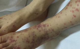 预防过敏性紫癜方法有哪些
