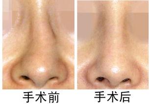 鼻子上的黑头怎么解决?