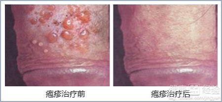 男性生殖器疱疹怎么治疗