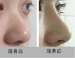 假体隆鼻的成功率的决定因素
