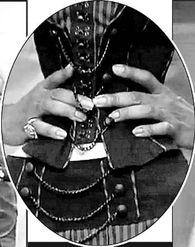 美国少女腰围仅45厘米 可以用十根手指箍住