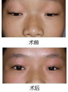 遗传性上眼睑下垂能矫正吗