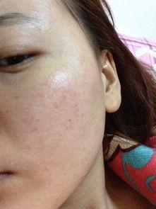 皮肤很多小痘痘,而且很多红的一块块的,特别是照片上脸颊在洗完...