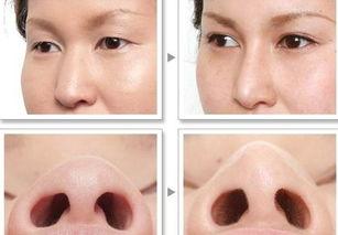 鼻子的种类-假体隆鼻的类型有哪些 各有什么优势呢
