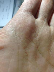 ...近手心里有很多密密麻麻的小颗粒,整个手掌都有,印在皮肤里,外...