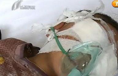 Shanxi Chinese Boy Found Drugged Unconscious, Eyes Dug Out