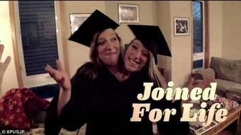 罕见 双头姐妹 大学毕业 共享同一个身体