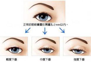 Yestar眼睑下垂矫正术 迅速拥有传电眼神