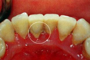 牙结石洗牙多少钱