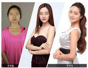 后才能做,因为未成年前,乳房可能还未发育完全,胸部还可能增大,...