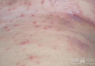 皮肤病的种类有哪些