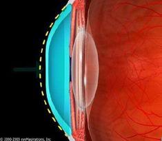 ...学附属眼科医院隐形眼镜及视力矫正中心简介