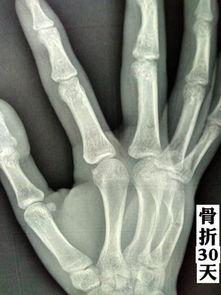 右手第五手掌骨骨折