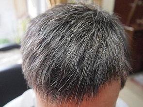 ...它,让白发慢慢变黑