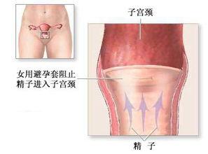 避孕方法 女性避孕套法 图片