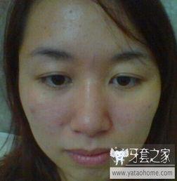 ...的 小龅牙 有没必要去矫正呢 23岁 中国最大的牙齿矫正论坛及精神...