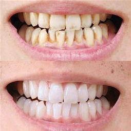 黑牙齿图片-深圳黑牙黄牙美白方法有哪些