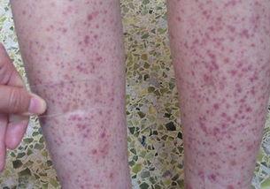过敏性紫癜的症状