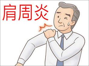 四十岁以下的人很少发生肩周炎   ... 从字面的意思我们就能看出这个病...