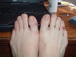 么如何打造一双玉足呢?除了日常每天的洗脚和指甲的修剪