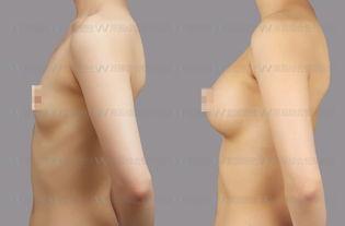 儿们,又瘦又有胸的女人才是人生赢家.   使用专用的针注射到乳腺下...